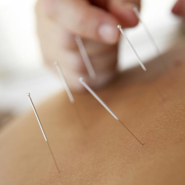 Image for Acupuncture